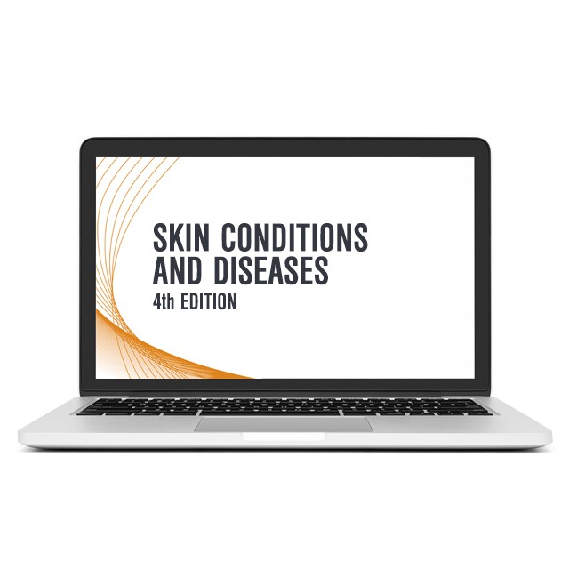 Skin Conditions and Diseases CME on Laptop