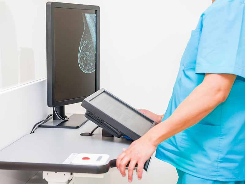 Radiology tech viewing mammogram