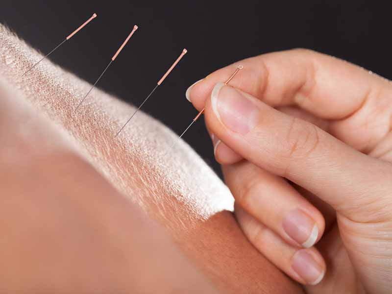 clinical practitioner placing acupuncture needles