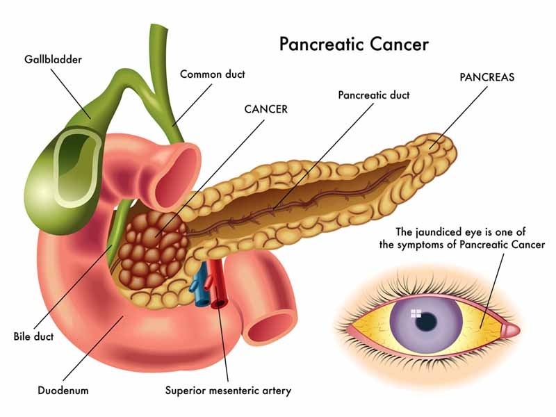 illustration of pancreatic cancer